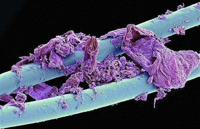 Flosdraad onder een microscoop bekeken